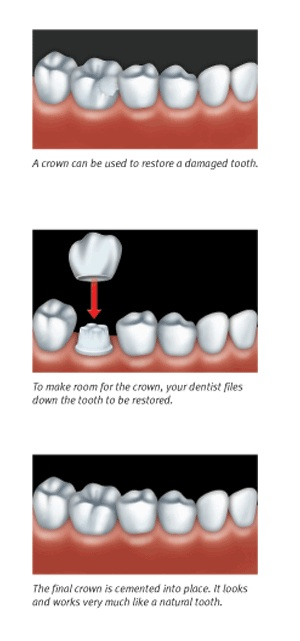 Dental Procedures for Crowns